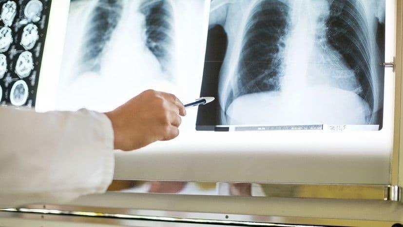 В мае 2021 года в Украине зарегистрировали 1 321 случай туберкулёза