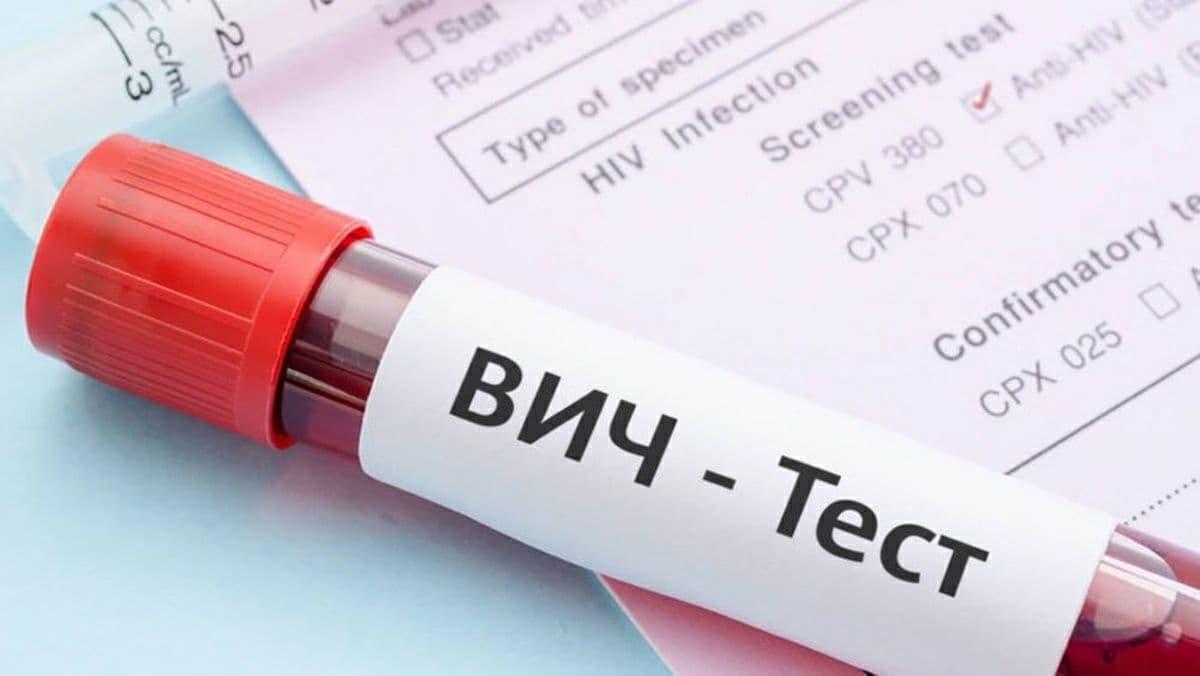В Украине в августе зарегистрировали 1 244 новых случая ВИЧ-инфекции