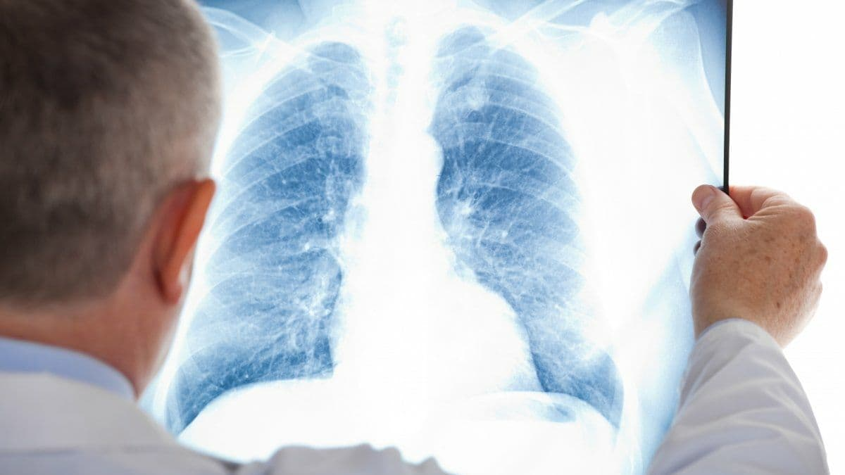 В августе 2021 года в Украине зарегистрировали 1 622 случая туберкулёза