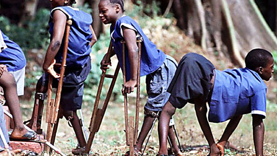 Последствия полиомиелита